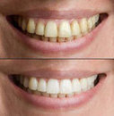 Services | Dental Dentist in MA | Scoop.it