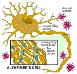 Actu santé : ALZHEIMER: Réduire le cholestérol du cerveau pour normaliser Tau | 1001 secrets de longévité ou comment bien vieillir | Scoop.it