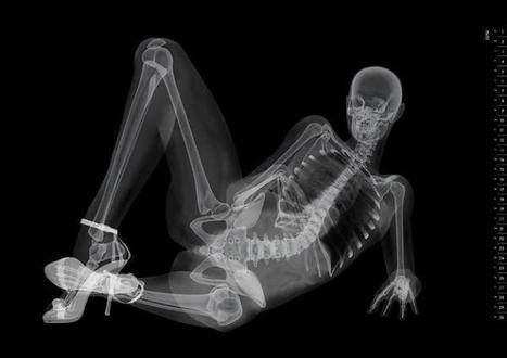 Eizo X-Ray Pin-Up Calendar | Xposed | Scoop.it