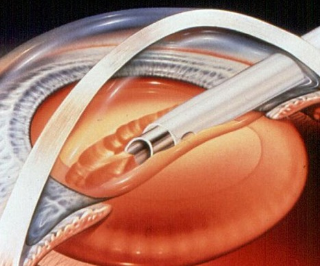 The success rate of cataract surgery is excellent – improved vision is achieved for patients.   Intraocular lenses   Scoop.it