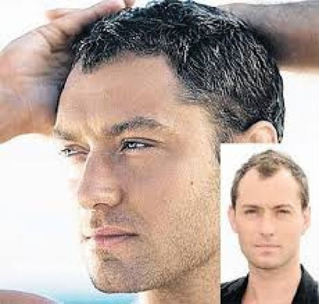 Various Risks Which Are Involved With Hair Replacement | Know About the Hair Replacement Systems for Men & Women | Scoop.it