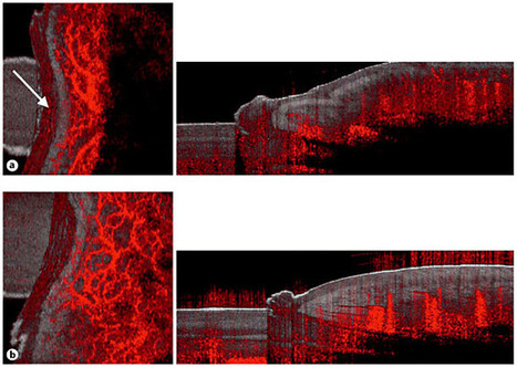 Dynamic Optical Coherence Tomography in Dermatology - FullText - Dermatology - Karger Publishers | Melanoma BRAF Inhibitors Review | Scoop.it