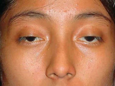 Bác sĩ Hàn Quốc tư vấn: Cách làm cho mắt to Tự Nhiên | ketbantamhuong9x | Scoop.it