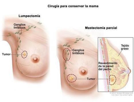 Cáncer de seno (mama): Tratamiento (PDQ®) - National Cancer Institute | Cancer de mama | Scoop.it