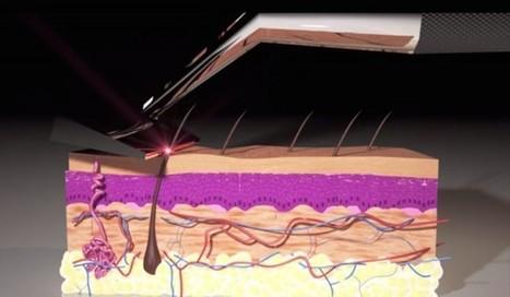 Un rasoir laser cartonne sur Kickstarter | Marketing digital, communication, etc. | Scoop.it