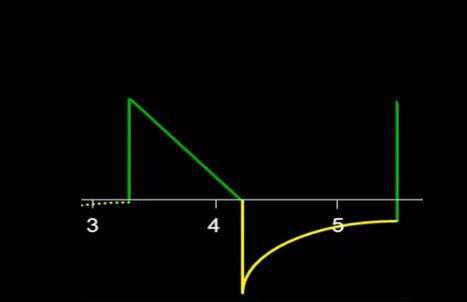 Ventilator Waveform Analysis | anaesthesia | Scoop.it