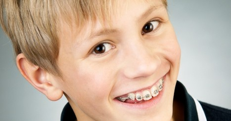 Does Your Child Need Braces? | Health Tips | Scoop.it