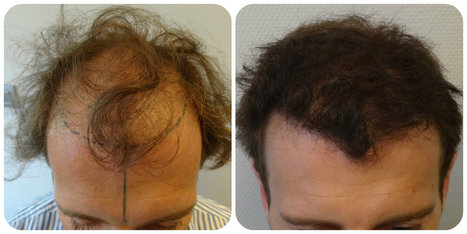 Benefits FUE hair restoration | Prohair Clinic | Scoop.it
