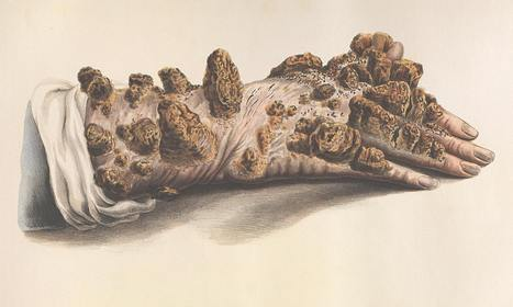 From weeping warts to leprosy: the gruesome art of medical illustration | Design | Scoop.it