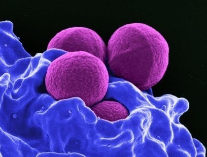 'Superbug' MRSA may be spreading through tainted poultry | AP Human Geo in the News | Scoop.it