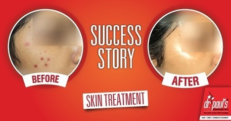 Success Story-Acne | Skin Care | Scoop.it