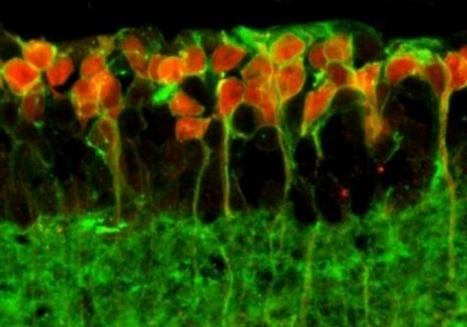 Vuelven sensibles a la luz con una proteína a unas células retinales para dotar de vista a ratones ciegos | Salud Visual (Profesional) 2.0 | Scoop.it