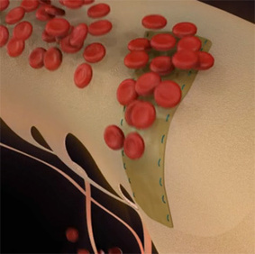 Allied Biocompatible, Bioabsorbable CardioCel Patch for Heart Repair Without Stem Cells (VIDEO) | Medical Devices & Patenting | Scoop.it
