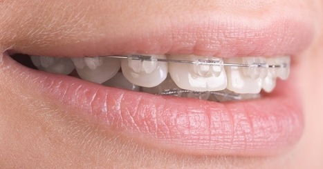 Why you need to visit orthodontics Melbourne? | All Dental Solutions in Melbourne | Preston Smiles | Scoop.it