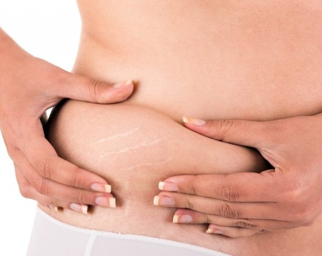 11 Home Remedies for Stretch Marks from Nature - HealthyHobbit | Naturally Healthy | Scoop.it