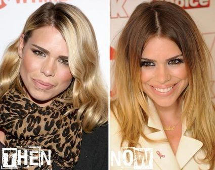 Billie Piper Plastic Surgery Before & After Photos | Billie Piper b4 & after pix | Scoop.it