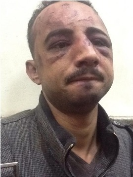 Evidence of Torture by Egyptian Islamists | Égypt-actus | Scoop.it