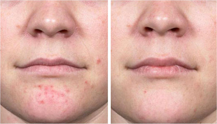 New treatments for cystic acne   beauty health and cosmetics   Scoop.it