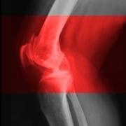 Stopping arthritis before it starts - MIT News | BlablaDoctor | Scoop.it