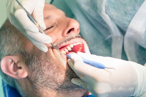 Remember the Do's and Don'ts Before Undergoing a Root Canal Procedure | Downtown Dental | Scoop.it