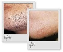 Laser Hair Removal Phuket | Plastic Surgery In Phuket | Phuket Plastic Surgery | Scoop.it