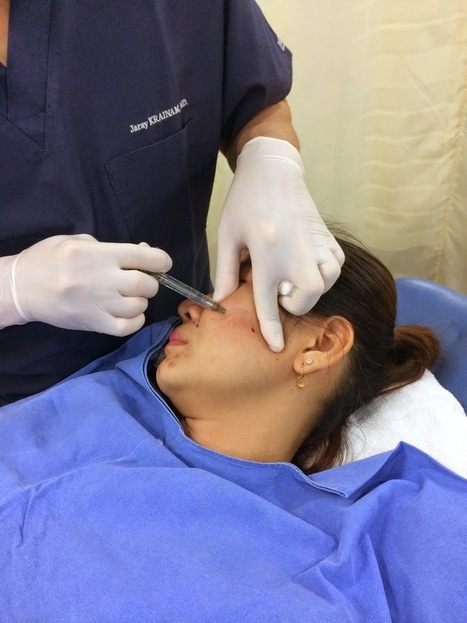 Bangkok Aesthetic Surgery Center: Botox And filler Prices In Thailand | Best Plastic Surgery Thailand | Scoop.it
