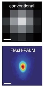 Microscopie optique super-résolution pour de meilleures observations en biologie moléculaire | microscopie | Scoop.it