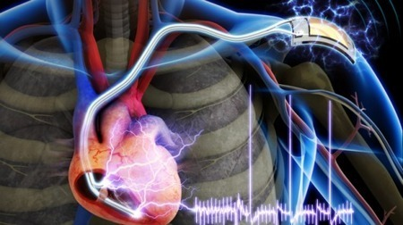 Cardiac pacemaker powered by body's own muscles developed   The future of medicine and health   Scoop.it