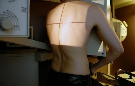 Limoges:Une compagnie de CRS touchée par la tuberculose   nouveautés médicales   Scoop.it