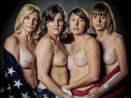 The SCAR Project -  28 Θαρραλέες, όμορφες γυναίκες, με μαστεκτομή | #opnhealth discussion | Scoop.it