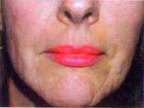 Elizabeth Laser and Cosmetic Medicine Centre, Sydney | Laser Skin Resurfacing Sydney | fraxel treatment | Scoop.it