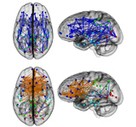 Brain Connectivity Study Reveals Striking Differences Between Men and Women | Social Foraging | Scoop.it