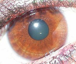 Altering eye cells may one day restore vision | Psychology and Brain News | Scoop.it