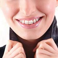 Orthodontie pour les adultes - Appareil dentaire pour adultes - Docteur Bertrand Godet | Santé, beauté et bien être : garder la forme | Scoop.it