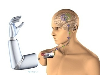 Trials imminent for implantable thought-controlled robotic arm | Tracking the Future | Scoop.it