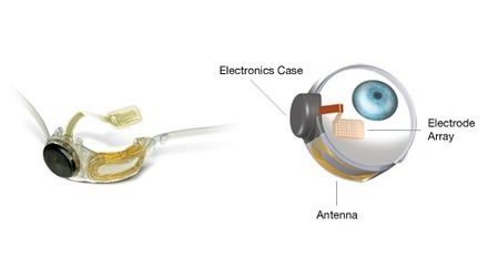 "Argus II becomes first ""bionic eye"" to gain approval for sale in U.S. 