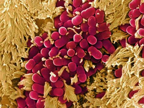 Microbiote intestinal : trop de propreté peut nuire à votre santé | Veille Scientifique Agroalimentaire - Agronomie | Scoop.it