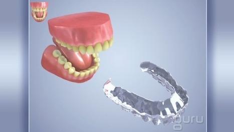 Strips | Pediatric Dentist | Scoop.it