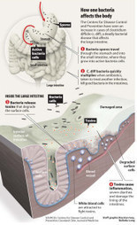 How One Deadly Bacteria Affects the Body Infographic | The Best Infographics | Scoop.it