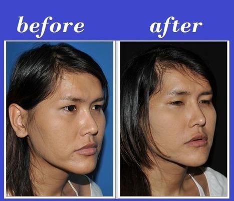 Nose Augmentation Filler Injection | Bangkok Aesthetic Surgery Center | Bangkok Aesthetic Surgery | Scoop.it