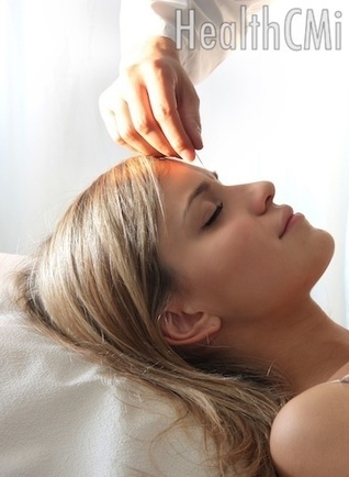 Acupuncture Migraine Remedy Found | Acupuncture and the cardiovascular; circulatory system | Scoop.it