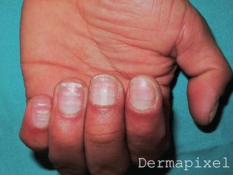 Que curar el hongo de las uñas en los pies en puesto en marcha