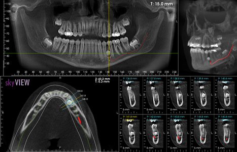 Cone Beam CBCT Scanning Increases Quality & Accuracy Of DentalCare   Biolase ImagingTechnology for North TX, OK, AR and Beyond   Scoop.it