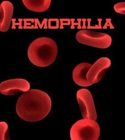 How Does Hemophilia Affect People? Know the Consequences | Blood Disorders | Scoop.it