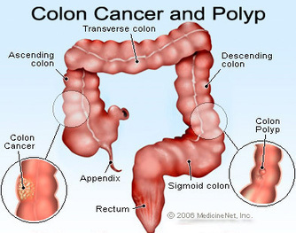New blood test detects colon cancer before it develops | Medical Applications | Scoop.it