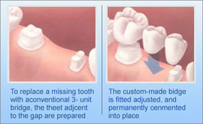 Tooth Replacement And its Major Tips   Dental Clinic Delhi   Scoop.it