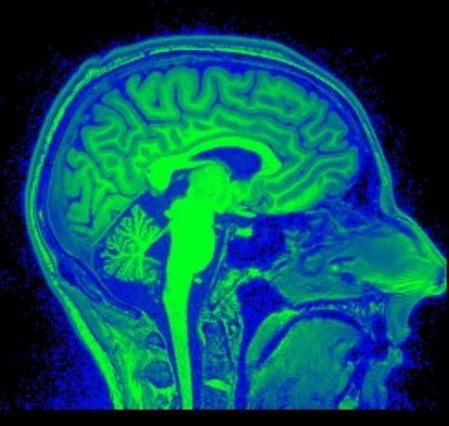The Neuroscience of Social Innovation | Centre for Social Innovation | User Advocate | Scoop.it