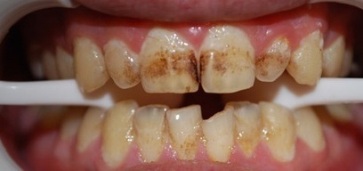Are Your Teeth Discoloured? | Dental Clinic In Delhi | Scoop.it