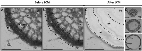 Environmental Microbiology: Laser microdissection and microarray analysis of Tuber melanosporum ectomycorrhizas reveal functional heterogeneity between mantle and Hartig net compartments | My papers | Scoop.it