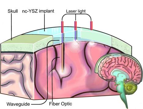 Skull implant delivers life-saving laser treatments to patients with brain disorders | Amazing Science | Scoop.it